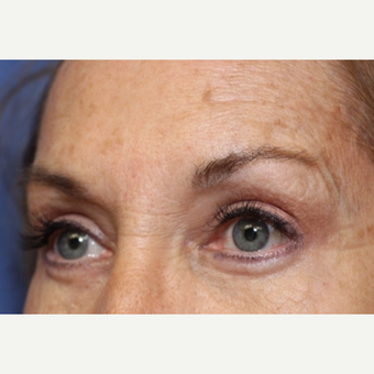 62 year old woman with Eyelid Surgery after 3696949