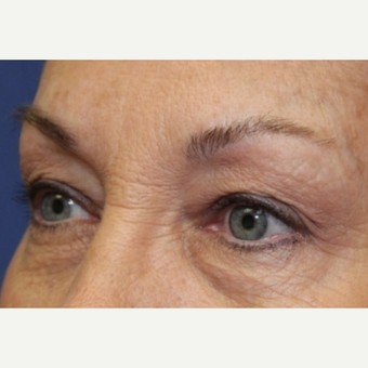 62 year old woman with Eyelid Surgery before 3696949