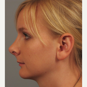 18-24 year old woman treated with Rhinoplasty after 3344162