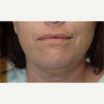 35-44 year old woman treated with Laser Resurfacing
