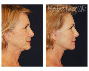 Facial Rejuvenation before 1285311