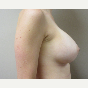 Breast Augmentation after 3530391