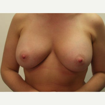 25-34 year old woman treated with Breast Implant Removal before 1539756