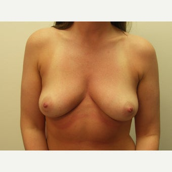 25-34 year old woman treated with Breast Implant Removal after 1539756