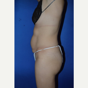 45-54 year old woman treated with No-Drain Tummy Tuck before 3655849