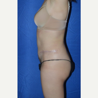 45-54 year old woman treated with No-Drain Tummy Tuck after 3655849