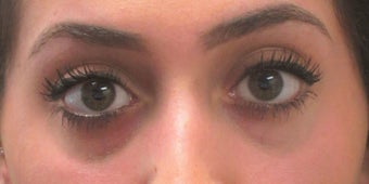 Before and after treatment of lower eyelid hollowing with Restylane before 3422895