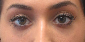 Before and after treatment of lower eyelid hollowing with Restylane after 3422895