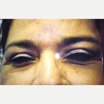upper and lower eye lid surgery after 3379123