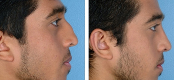 Functional Rhinoplasty before 1208306