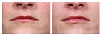 Restylane injection for lip augmentation before 6510