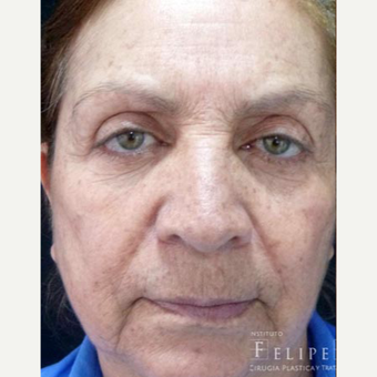 55-64 year old woman treated with Skin Rejuvenation before 3418005