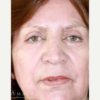 55-64 year old woman treated with Skin Rejuvenation after 3418005