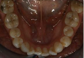 Orthodontic treatment without extraction of teeth before 546583
