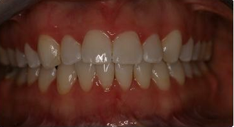 Orthodontic treatment without extraction of teeth 546583