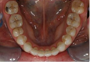 Orthodontic treatment without extraction of teeth after 546583