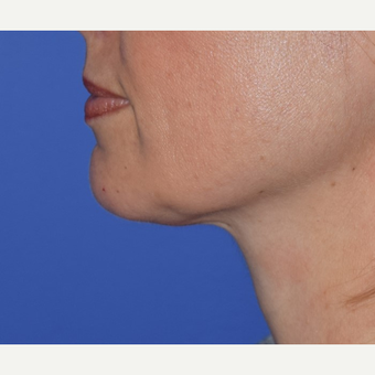 45-54 year old woman treated with Chin Liposuction after 3641480