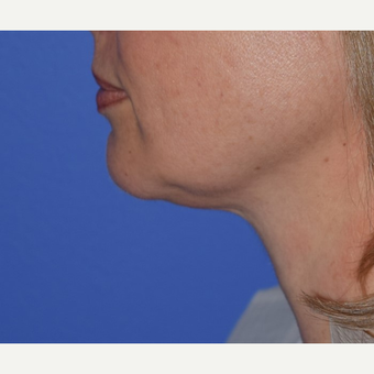 45-54 year old woman treated with Chin Liposuction before 3641480