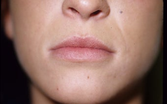 Lip Enlargement with Fillers (JUVEDERM) before 1042908