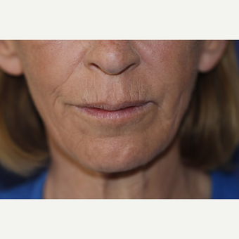 Juvederm Treatment after 3101998