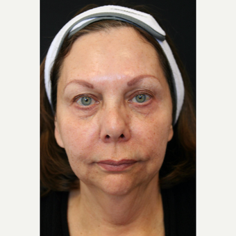 67 year old woman treated with Vertical Vector face & neck lift before 3701694