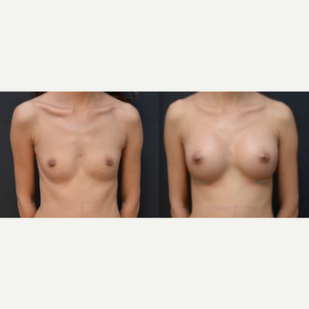 18-24 year old woman treated with Breast Augmentation before 3238777