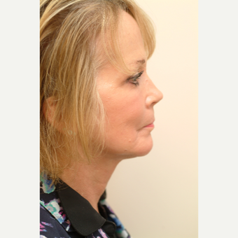 55-64 year old woman treated with Neck Lift after 3764396