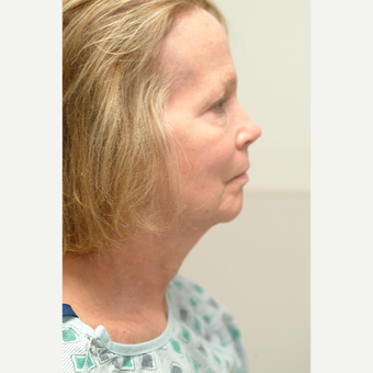 55-64 year old woman treated with Neck Lift before 3764396