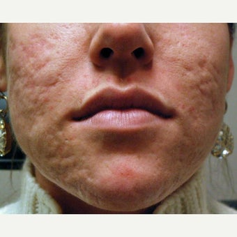 25-34 year old woman treated for Acne Scars before 1675879