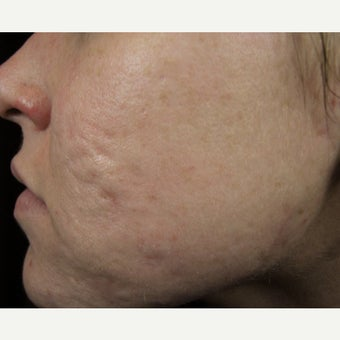 25-34 year old woman treated for Acne Scars 1675879