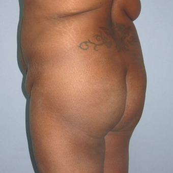 35-44 year old woman treated with Butt Augmentation before 3173352
