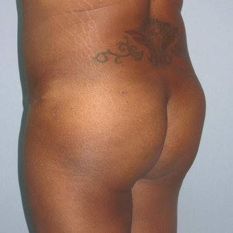 35-44 year old woman treated with Butt Augmentation after 3173352