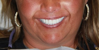 All-on-4® Dental Implants  after 1414846