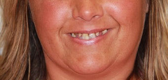 All-on-4® Dental Implants  before 1414846