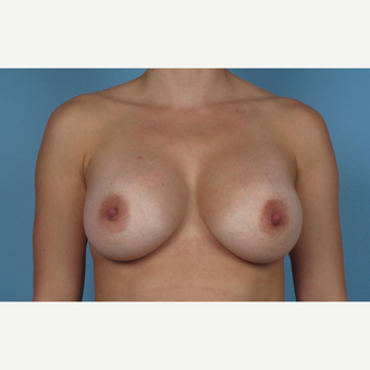 35-44 year old woman treated with Breast Augmentation after 3245161