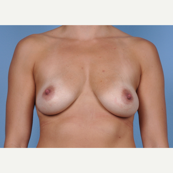 35-44 year old woman treated with Breast Augmentation before 3245161