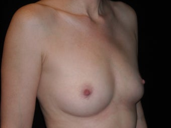 Slender 35 year old wanted fat transfer to her breasts 1394170