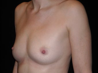 Slender 35 year old wanted fat transfer to her breasts after 1394170