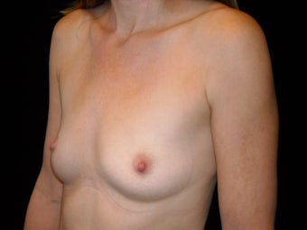 Slender 35 year old wanted fat transfer to her breasts before 1394170