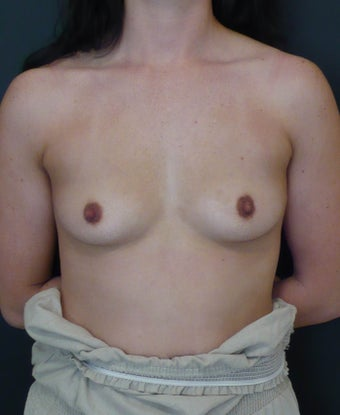Breast augmentation 1 before 251877