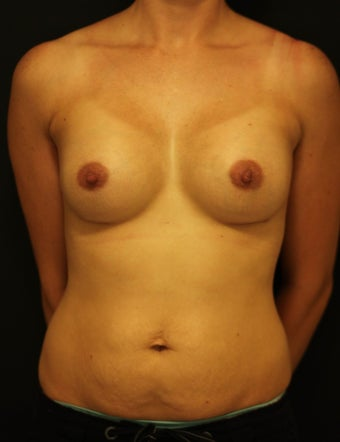 Breast augmentation 1 after 251877