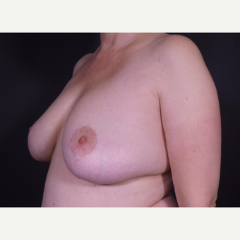 45-54 year old woman treated with Breast Implant Removal after 3468270