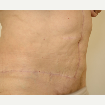 Tummy Tuck after 3108759