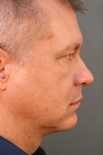 Male Chin Implant after 831525