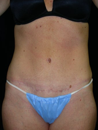 Abdominoplasty after 581644