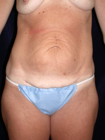 Abdominoplasty before 581644
