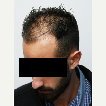 35-44 year old man treated with Organic Hair Transplant before 3172522