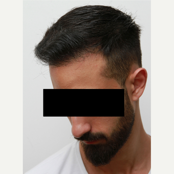 35-44 year old man treated with Organic Hair Transplant after 3172522