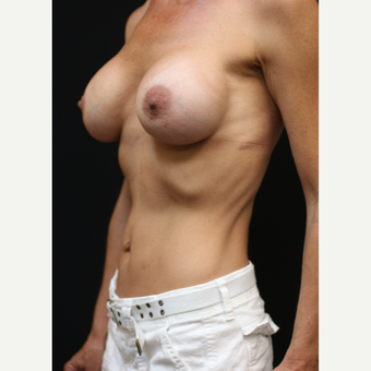 42 year old woman treated with Breast Implant Revision after 3070935