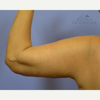 55-64 year old woman treated with Arm Lift after 3386369